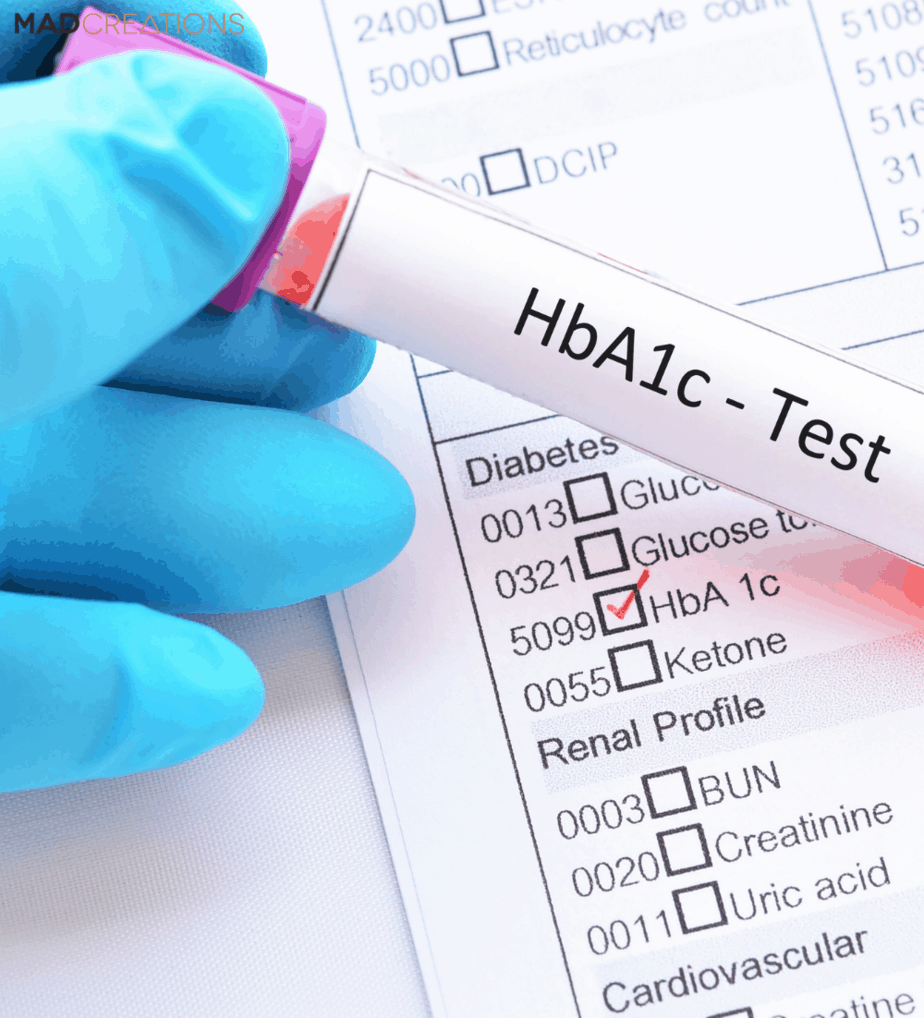 hba1c test and chart